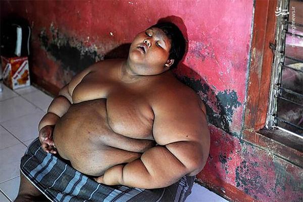 چاقترین کودک جهان پس از لاغری! + عکس