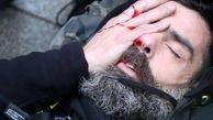 اصابت گلوله به چشم رهبر جلیقه زردها + عکس