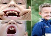 دانش آموزی با بزرگترین دندان!+عکس