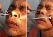 بی دندان شدن جراح چینی در نتیجه خستگی زیاد! +فیلم