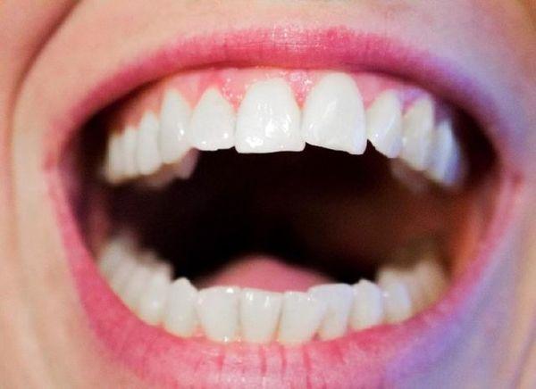 ۳ توصیه برای پیشگیری از بوی بد دهان
